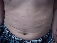 慢性荨麻疹到底能不能治好呢