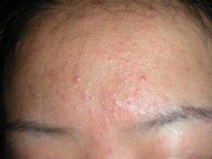 额头上长痘痘的病因是什么?