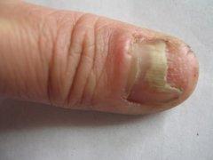 灰指甲会给患者的生活带来哪些影