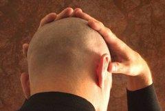 脱发的危害有哪些?